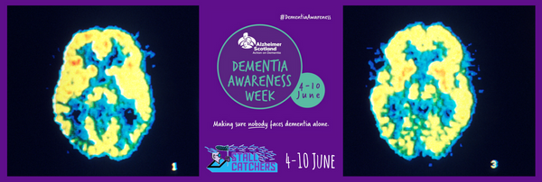 🎮 Play Stall Catchers during Dementia Awareness Week in Scotland